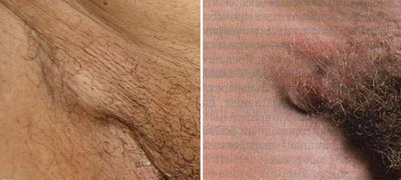 фото увеличенных лимфоузлов в паху