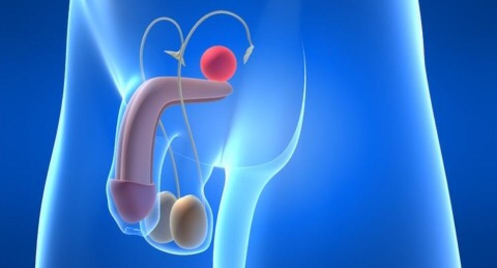 Яблочный уксус от рака простаты