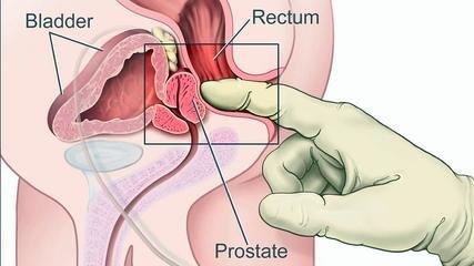 Рак предстательной железы-методы лечения