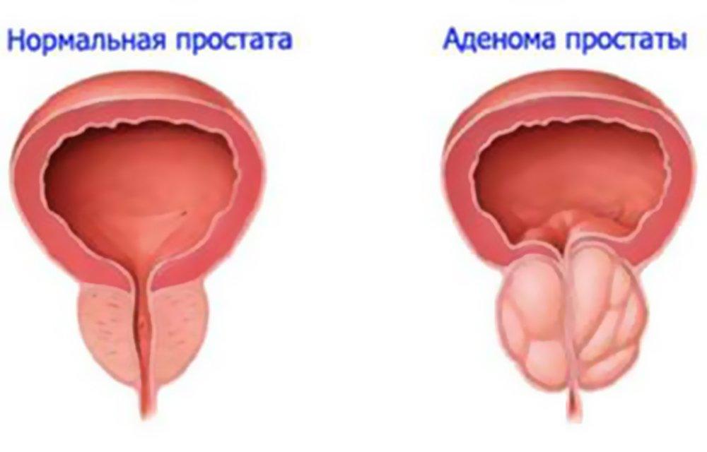 Рак предстательной железы жалобы