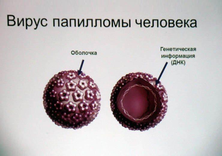 Кандилома вирус лечение в домашних условиях